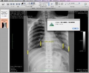 OsiriX心胸郭比(CTR)プラグイン画像